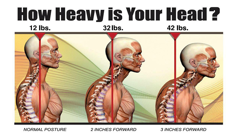 Where's Your Head At? The Fix for Your Neck Pain and Headaches